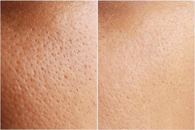 Điều trị lỗ chân lông to ở đâu hiệu quả