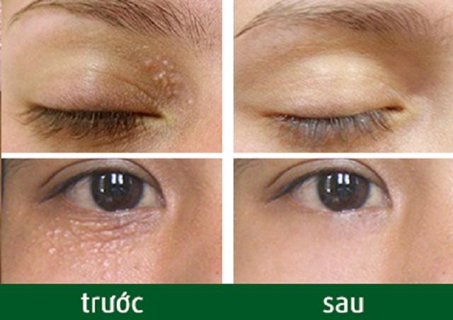 Điều trị mụn thịt quanh mắt ở đâu hiệu quả nhất 2