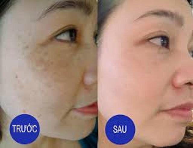 Điều trị nám với laser hơi đồng phương pháp số 1 thế giới 2