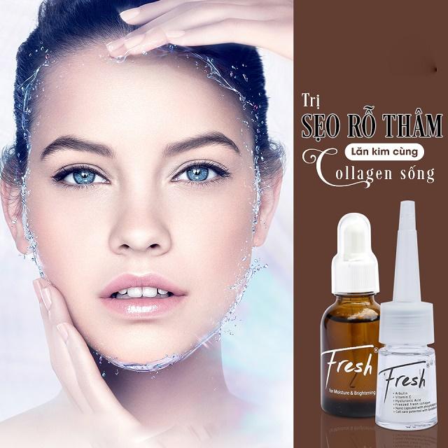 Điều trị sẹo nông bằng lăn kim Collagen sống an toàn 2