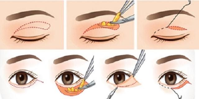 Lấy mỡ mắt không phẩu thuật là gì?