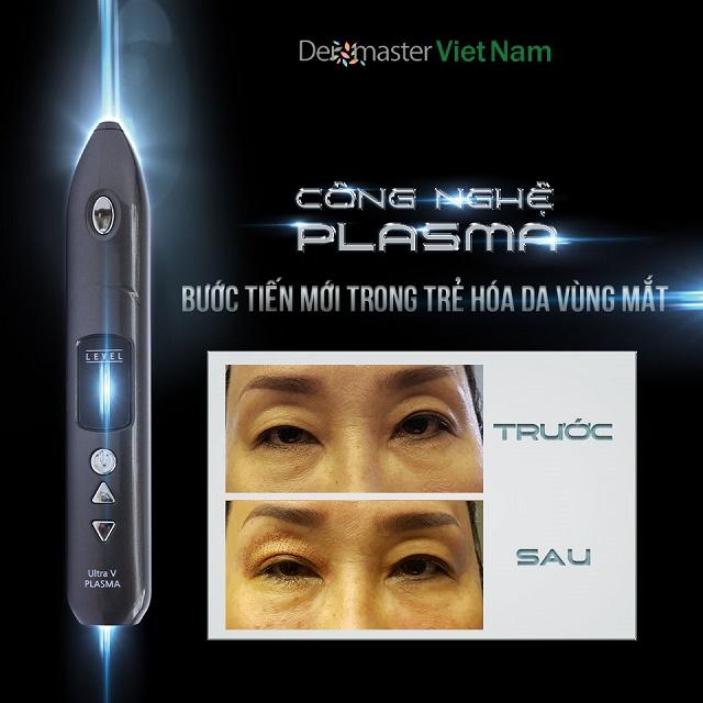 Nhấn mí mắt không phẩu thuật Ultra V Plasma tại Dermaster Việt Nam