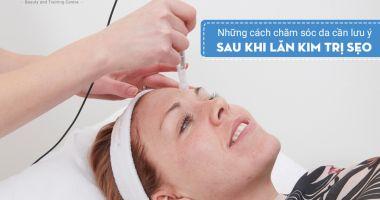 Những cách chăm sóc da cần lưu ý sau khi lăn kim trị sẹo